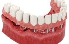 BASAL COMPLEX — Восстановление зубов на 1 челюсти за 3 дня