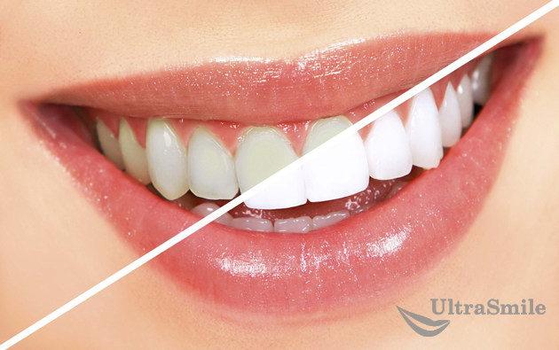 Что нужно для отбеливания зубов в клинике