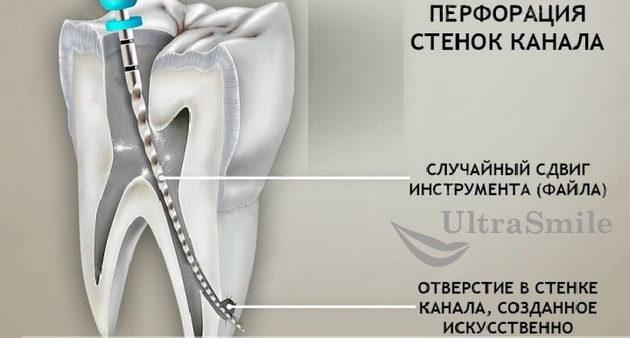 perforatsiya-kornya-zuba