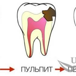 pulpit_periodontit
