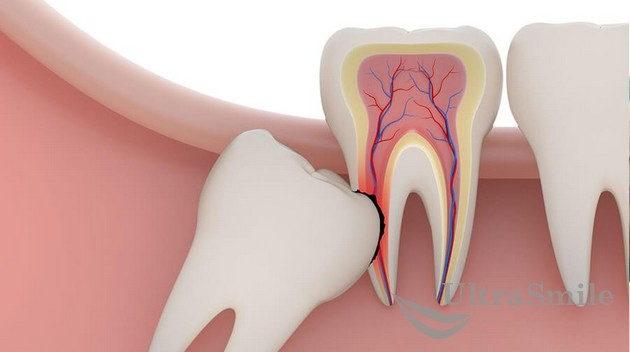 Разрушение соседнего зуба