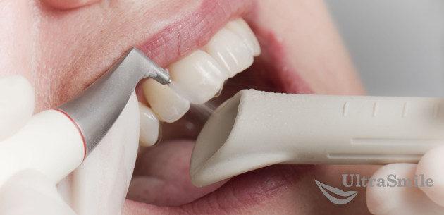 снятие-зубного-налета