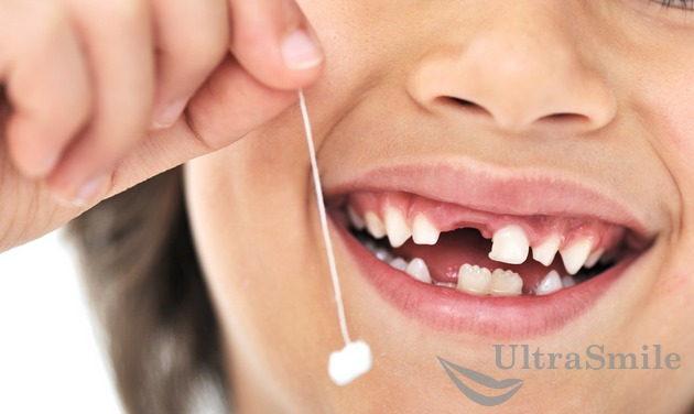 udalenie-molochnyh-i-korennyh-zubov-u-detej