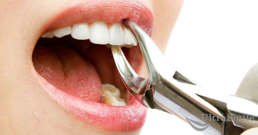 10 последствий после удаления зуба, которые считаются нормой