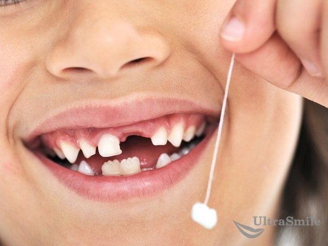 5 поводов отказаться от удаления молочных зубов