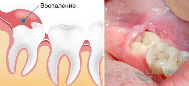 Сложное прорезывание зубов