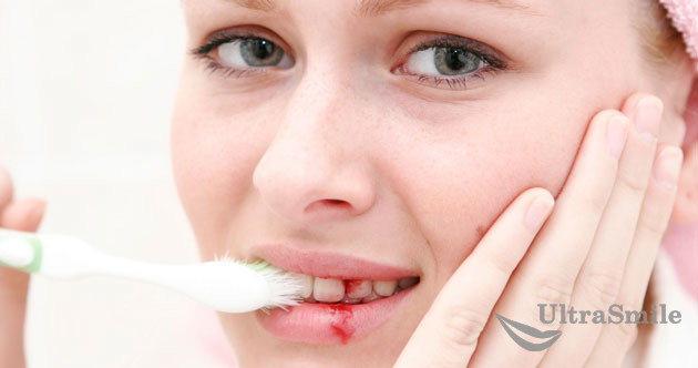 Десна кровоточат при чистке зубов