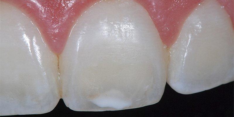 Начальный кариес в стадии пятна – идти к стоматологу или лечить самостоятельно?