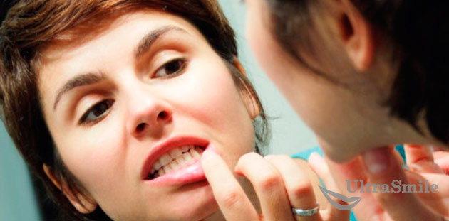 правила лечения воспаления десен