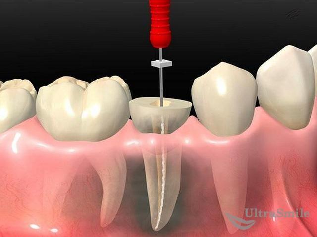 Пульпит зуба у взрослых: симптомы и формы заболевания