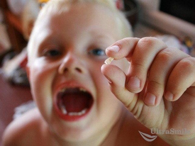 8 актуальных рекомендаций после удаления зуба у ребенка