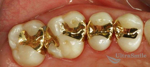 Золотые пломбы