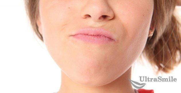 5 причин периодонтита: кто находится в группе риска