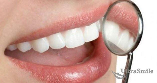 отбеливание-зубов-перекисью-водорода