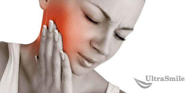 5 историй о том, что зубные пломбы нужно своевременно менять