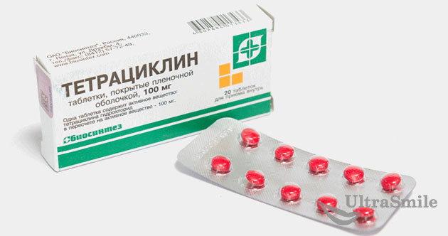 Тетрациклин при периодонтите: возможные побочные эффекты