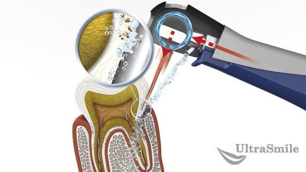 Лечение пародонтита с применением аппарата Vector