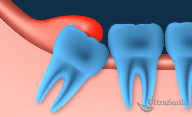 Приговор для зуба мудрости: лечить или удалять?