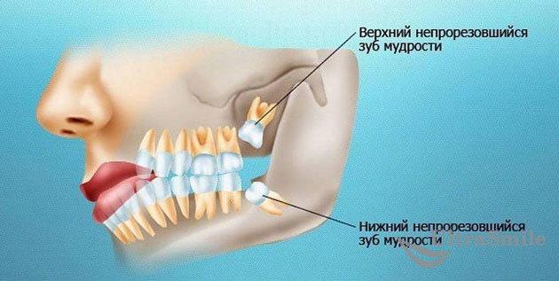 зубы-мудрости