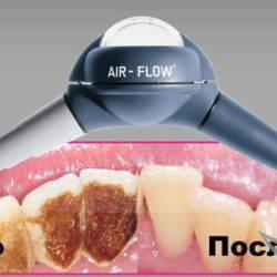 Air-Flow до и после
