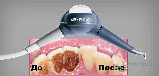 Air Flow – современная альтернатива ультразвуку