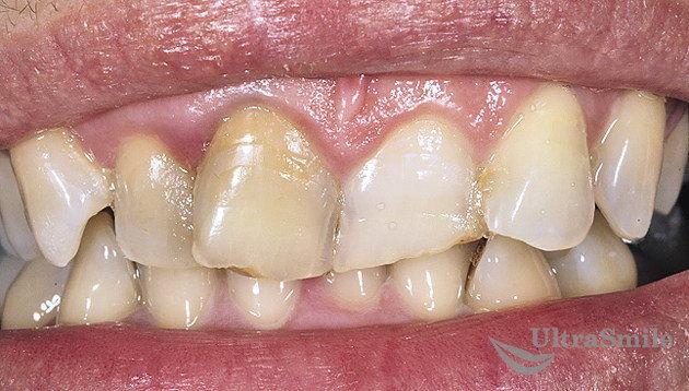 Деформация формы зубов