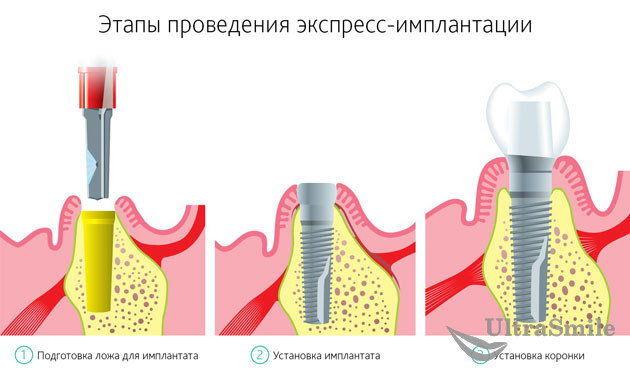 Экспресс-имплантация