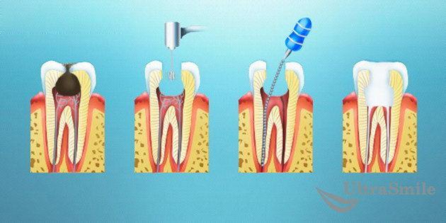 Хирургический метод лечения пульпита