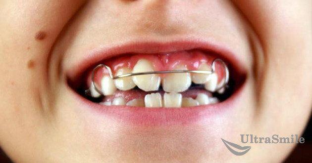 Ношение-ортодонтических-конструкций