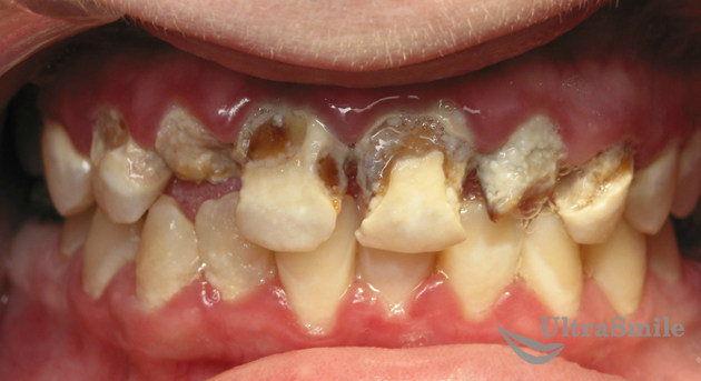 Разрушение-зубов