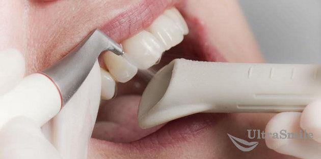 Чистка зубов системой AirFlow