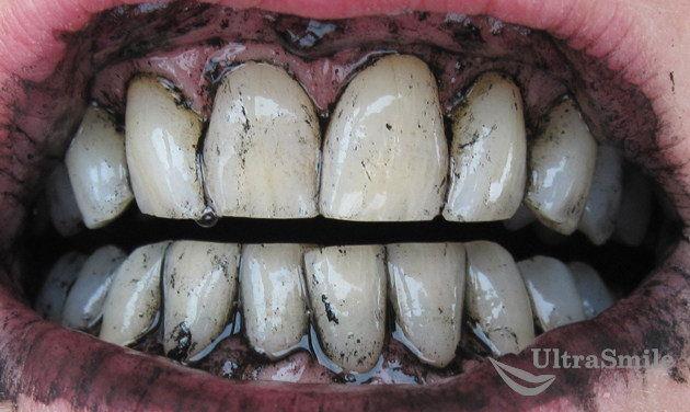 чистка-зубов-углем