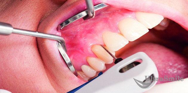 чистке-зубов-и-пародонтальных-карманов