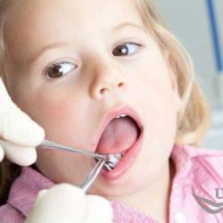 gingivit-u-detej