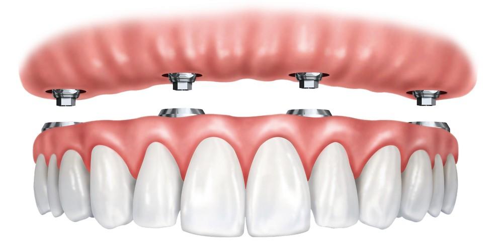 Имплантация зубов с немедленной нагрузкой протезом