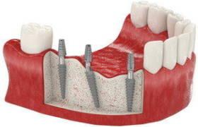 Имплантация сегмента зубов по акции