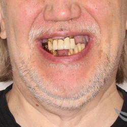имплантация на 2х челюстях до и после