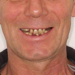 комплексная имплантация зубов до и после