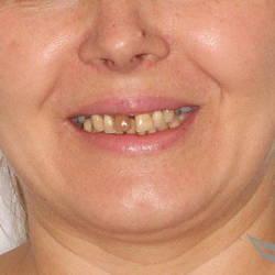 Имплантация и условно-съемные протезы