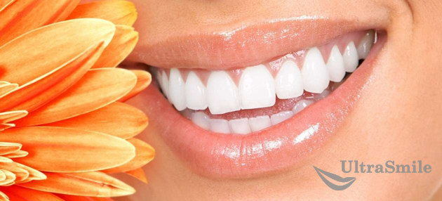 Реставрация зубов: как создать безупречную улыбку