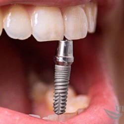 инновация-имплантаия