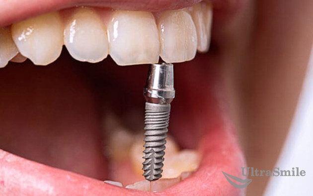3 способа, как вставить зубы меньше, чем за неделю