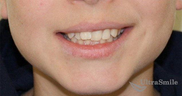 Исправление скученности зубов до и после