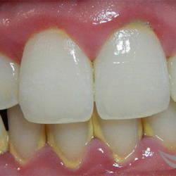 Лечение десен и чистка зубного налета