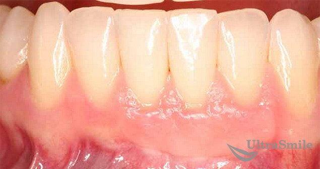 отбеливание зубов статьи