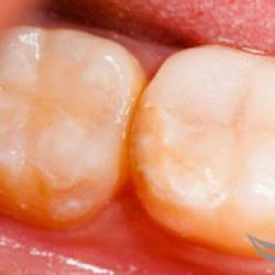 Лечение зубов и установка пломбы