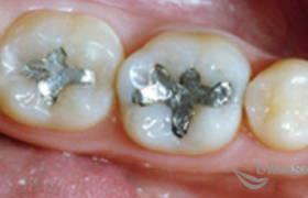 Замена зубных пломб до и после