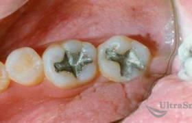 Замена зубной пломбы до и после