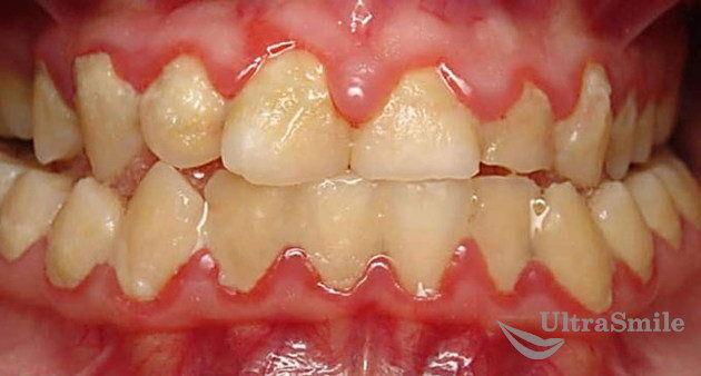 налет-на-зубах