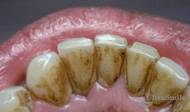 Налет на зубах - показания к чистке аппаратом Air Flow
